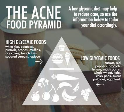Acne Food Pyramid Reveals How To Eat For Clear Skin | Middays with Becky Alignay | Scoop.it