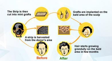 Get high quality hair transplant in Kolkata at cost-effective rates | Hair Transplant in Kolkata | Scoop.it