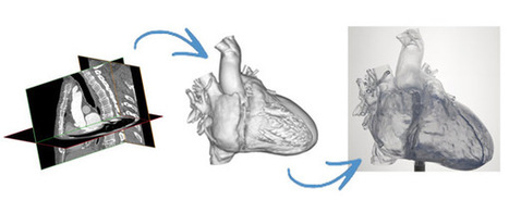 New facts:  HeartPrint frm Materialise: Biomedical software and multimaterial 3dprinting solutions | Medical Engineering = MEDINEERING | Scoop.it