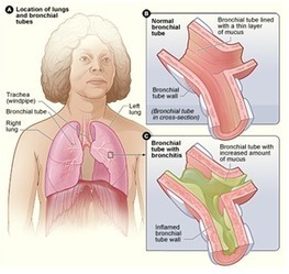Respiratory Diseases – An Overview | Science-based Medicine | Scoop.it
