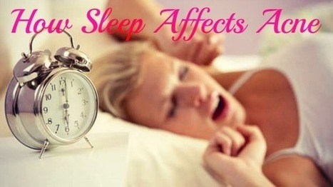 Sleep and Acne: Are the Two Actually Related? | Health and Fitness Articles | Scoop.it