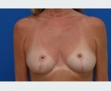 Surgical process of reshaping and resizing breast | Breast augmentation Boca Raton | Scoop.it