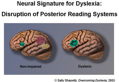 Disrupted Network Connections In The Brain Causes Dyslexia; Study Reveals - Angle Chronicle | Dyslexia | Scoop.it