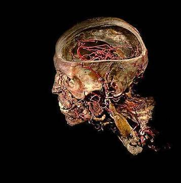 Burke's skeleton to human body parts: New app opens up University of Edinburgh's Anatomical Collections | Culture24 | Everything open | Scoop.it