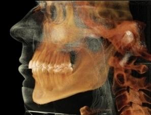 Digital dentistry: Is this the future of dentistry? - Dental Economics | IMAGINA Dental | Scoop.it