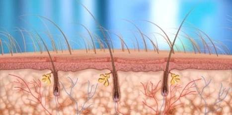 Graft Calculation | Hair Transplantation Turkey | Scoop.it