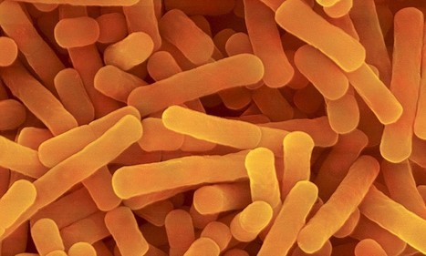 Low levels of healthy gut bacteria can cause mental health issues such | Curiosity | Scoop.it