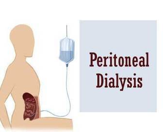 Guideline for Laparoscopic Peritoneal Dialysis Access Surgery | Peritoneal dialysis | Scoop.it