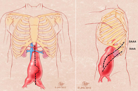 Abdominal Aortic Aneurysm: When It's Surgery Time | Vascular pathology | Scoop.it