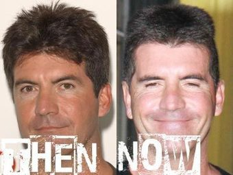 Simon Cowell Plastic Surgery Before & After Photos | Celebrity Plastic Surgery | Scoop.it