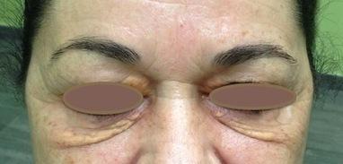 Xantelasma palpebrale. Cause e Cura. Dr. Renata Migliardi | Oculista News | Scoop.it