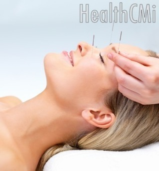 Acupuncture Heals Facial Paralysis - New Study - HealthCMI | Acupuncture, its benefits and risk | Scoop.it