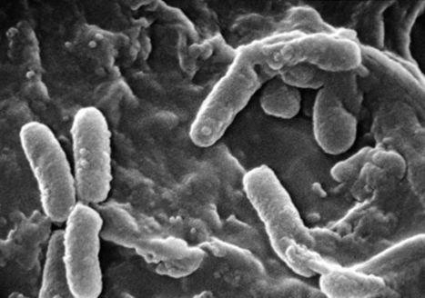 Bactéries : seront-elles les pires ennemis des astronautes du futur ? | Toxique, soyons vigilant ! | Scoop.it