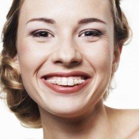 Quand mes dents sont mal alignées, je fais quoi? | Fédération Française d'Orthodontie | Scoop.it