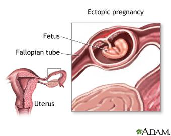 Troubling Rise in Ectopic Pregnancies Baffles Medical Experts | Diethylstilbestrol (DES) | Scoop.it