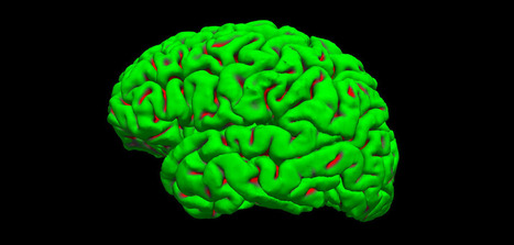 Physical activity shown to improve brain volume, cut Alzheimer's risk in half | Physical Education & Fitness | Scoop.it