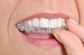 smile with confidence with Invisalign from a trusted Lexington SC dentist | Business | Scoop.it