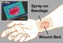 New paint-on, clear bandage not only protects wounds and burns but enables direct measurement of tissue oxygen | Amazing Science | Scoop.it