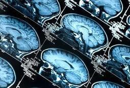The Top 10 Challenges for Brain Science in 2013 | Neuroanthropology | Scoop.it