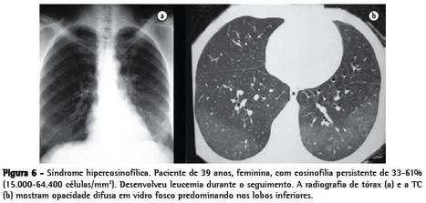EOSINOFILIA PULMONAR | Funciones de Macrófagos, neutrófilos, eosinófilos, basófilos y celulas cebadas | Scoop.it