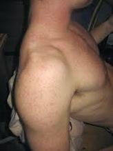 Skin Care: Keratosis Pilaris. Chicken Skin Tiny Red Bumps. | Intertainment | Scoop.it