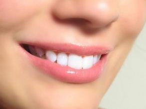 Get Sparkling Teeth While Safeguarding Your Oral Health | Dental Health Service | Scoop.it