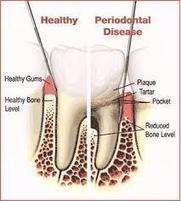 Cara Alami Menyembuhkan Periodontitis ~ Obat Ginjal Bocor Tradisional | healt | Scoop.it