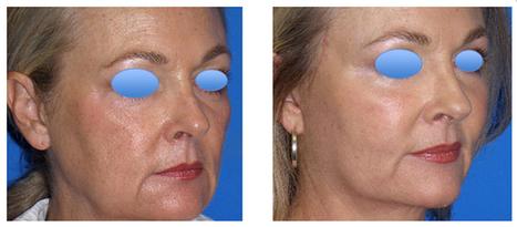 MACS-Lift Facelift Thailand - Urban Beauty Thailand | Facelift Thailand Find Thai Face Lift Best Surgeons in Bangkok, Phuket Thailand | Scoop.it