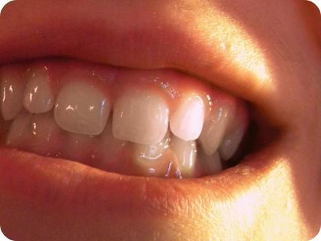 Nanotechnologies : un plombage qui reminéralise la dent et tue les ... | Les promesses des nanotechnologies | Scoop.it