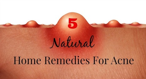 5 Natural Home Remedies For Acne | Natural Skin Care Topics | Scoop.it