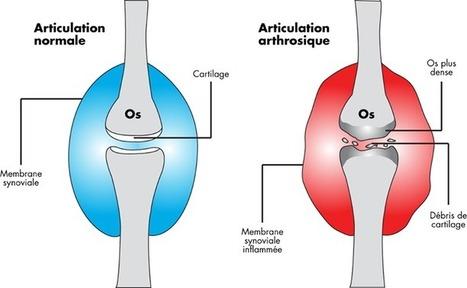 Arthrose : Comment soulager les douleurs articulaires | Facebook | Partenaires Terr'amata | Scoop.it