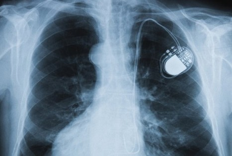 Heartbeat Passwords Secure Implanted Medical Devices - Health News - redOrbit   diabetes and more   Scoop.it