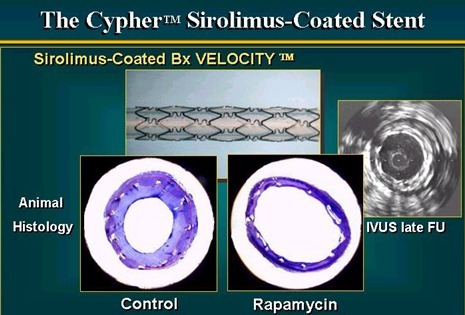 10 years ago the first drug eluting stent data published: Sirolimus-Eluting Cypher Stent in Sirius Trial | Heart and Vascular Health | Scoop.it