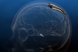 FDA Approves Brain Implant to Monitor and Autonomously Respond to Epileptic Seizures | Managing Technology and Talent for Learning & Innovation | Scoop.it