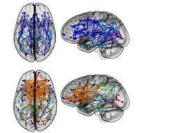 El cerebro de mujeres y hombres muestra distinta conectividad | Deporte, ciencia y vida | Scoop.it