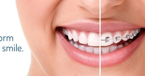 Treat the Irregularities in your mouth by visiting the Orthodontics | All Dental Solutions in Melbourne | Preston Smiles | Scoop.it