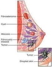 Ruwaidah Herbal: Cara Alami Menyembuhkan Papiloma Intraduktal | healt | Scoop.it