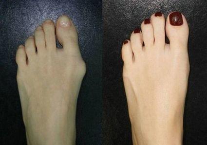 Come eliminare I fastidi legati all' alluce valgo?   Health & Beauty - International   Scoop.it