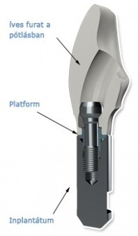 Platform screw attached Dentadvance dental replacements | Dental Health News | Scoop.it