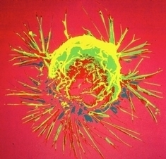 Did Cancer Evolve to Protect Us? | Allergies, immunity and infections | Scoop.it