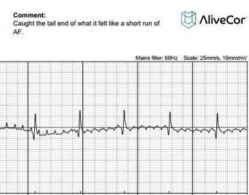 When a Patient is in Control of His Health: Posting ECG Results on Twitter   ECG   Scoop.it