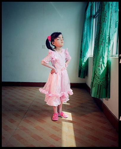 Photographer Documents Chinese Citizens with Rare Diseases | Maladie de Behçet | Scoop.it