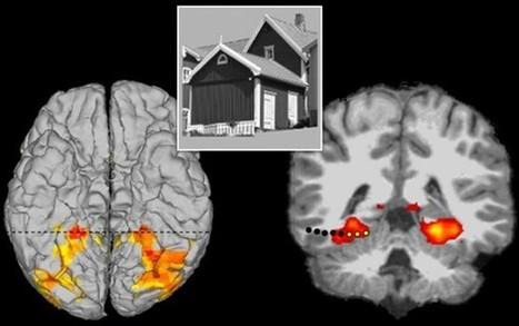 ScienceShot: Deep Brain Stimulation Triggers Hallucinations | Interessante | Scoop.it