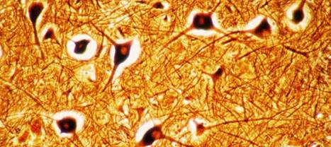 Bonne nouvelle, la greffe de neurones est désormais possible | training, opportunities and scholarship | Scoop.it