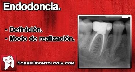 Endodoncia: Definición y modo de realización   Blog de Odontología   Odontología   Scoop.it