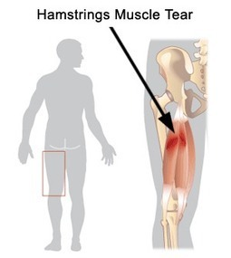 How Your Physiotherapist Can Help Heal Your Hamstring Injury | Active Physio Therapy | Scoop.it