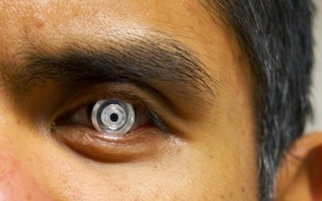 Telescopic Contact Lens Lets you Zoom in 3X | Technology in Business Today | Scoop.it