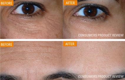 Face serum -Argireline , ferulic serum, Anti aging and beauty | bio  cosmetics  - serum for   face | Scoop.it