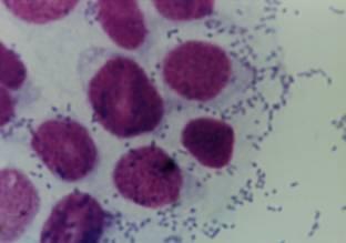 Escherichia coli microorganismo divergente con actitud dual en su relación de convivencia con sus hospederos. | Escherichia coli | Scoop.it
