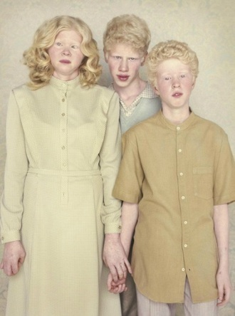 Photographer Captures 'Albinos' In Thought Provoking Photo Series | What's new in Visual Communication? | Scoop.it